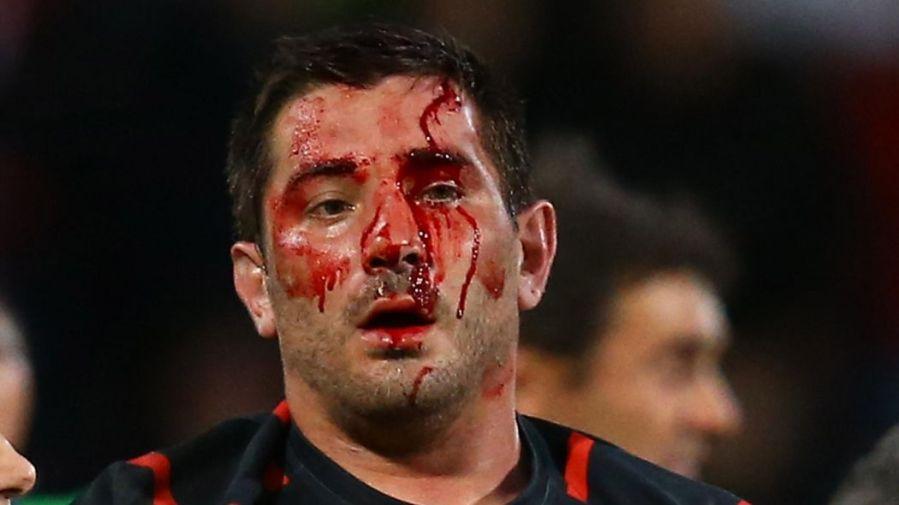 rugby-xvdelacrampe-sang-ffse-match